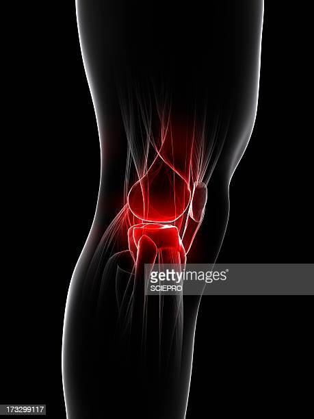 knee pain, conceptual artwork - human knee stock illustrations, clip art, cartoons, & icons
