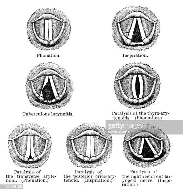 ilustraciones, imágenes clip art, dibujos animados e iconos de stock de vista laringoscópica de una laringe en diferentes condiciones - siglo xix - cuerdas vocales