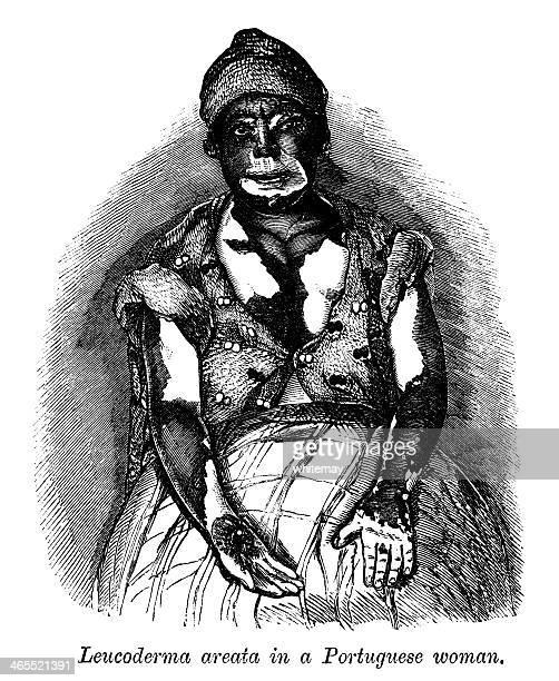 Leucoderma Areata in a Portuguese Woman (Victorian engraving)