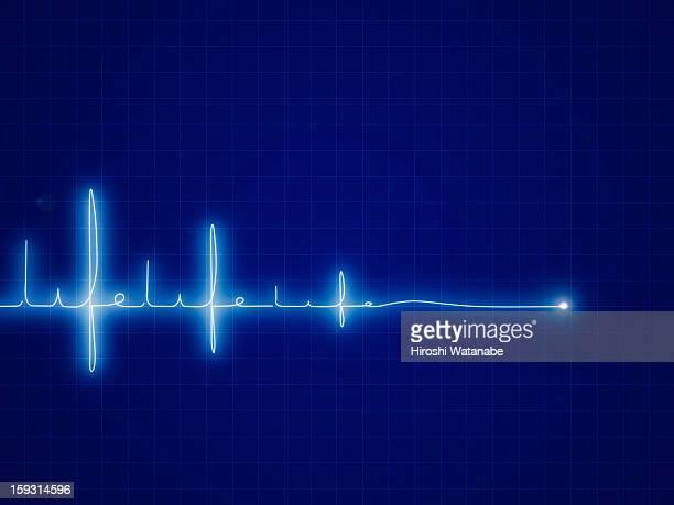30 Meilleurs Rythme Cardiaque Illustrations Cliparts