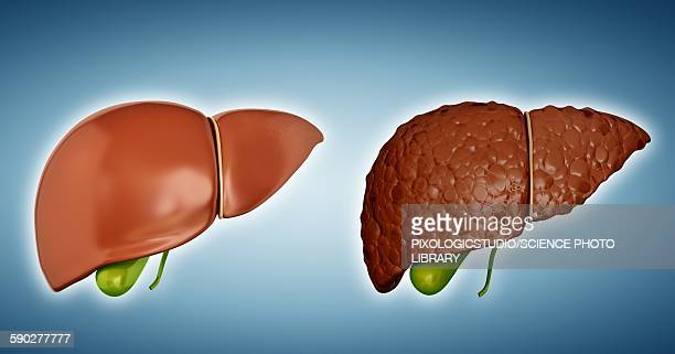 illustrations, cliparts, dessins animés et icônes de liver cirrhosis, illustration - organe interne humain