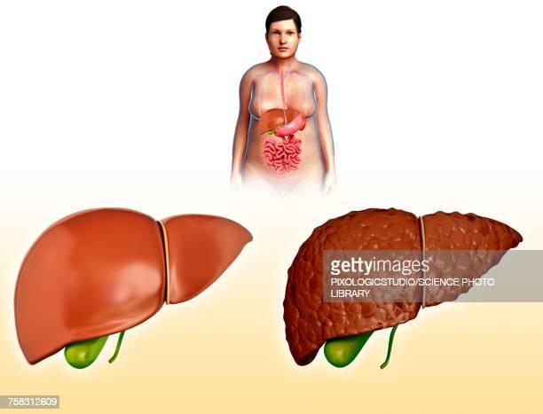 Liver cirrhosis, illustration
