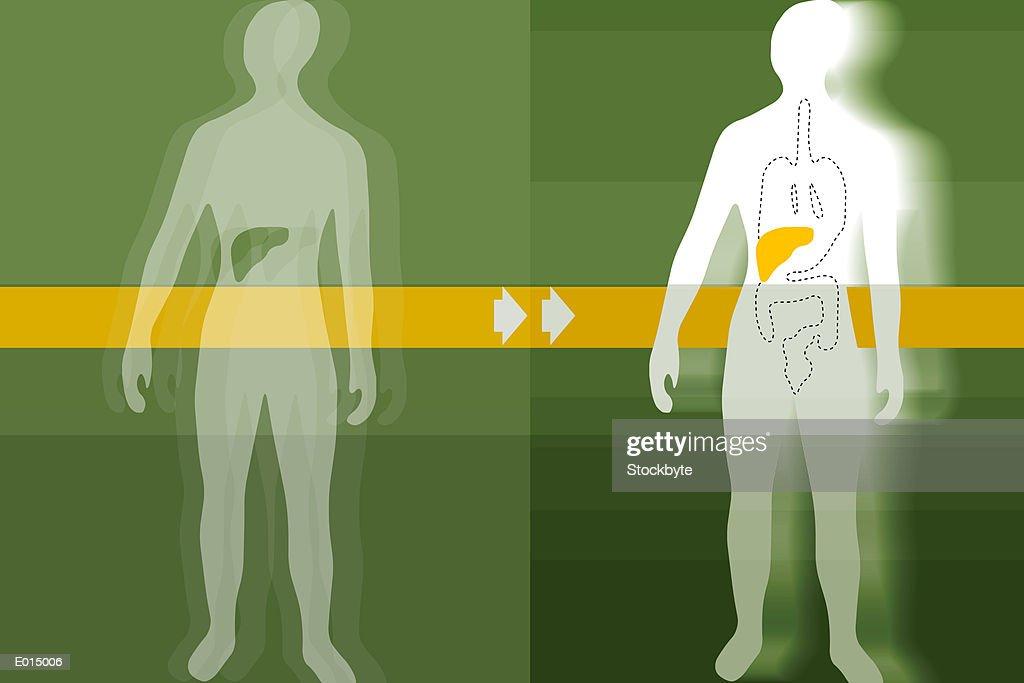 Liver transplant : stock illustration
