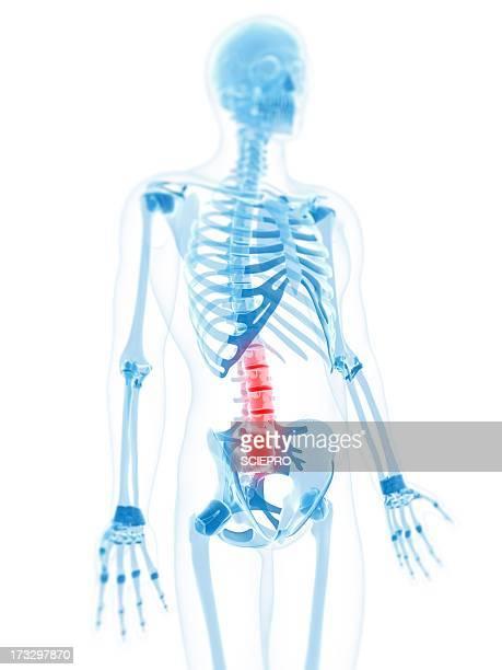 lower back pain, conceptual artwork - 下背部痛点のイラスト素材/クリップアート素材/マンガ素材/アイコン素材