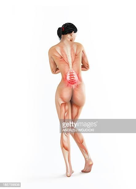 lower back pain, conceptual artwork - human back stock illustrations, clip art, cartoons, & icons
