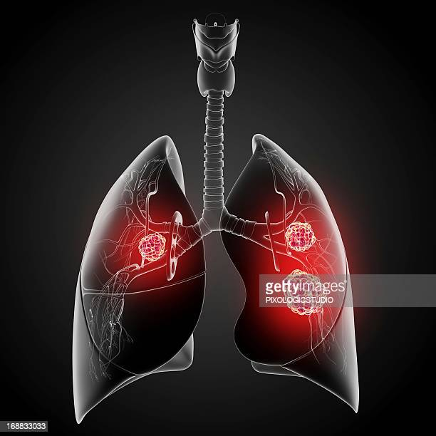 lung cancer, artwork - metastatic tumour stock illustrations