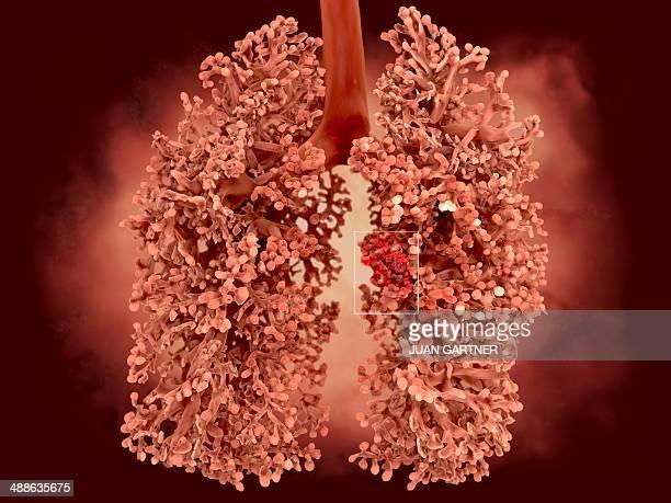 lung cancer, artwork - lungenkrebs stock-grafiken, -clipart, -cartoons und -symbole
