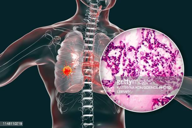 lung cancer, composite image - lungenkrebs stock-grafiken, -clipart, -cartoons und -symbole