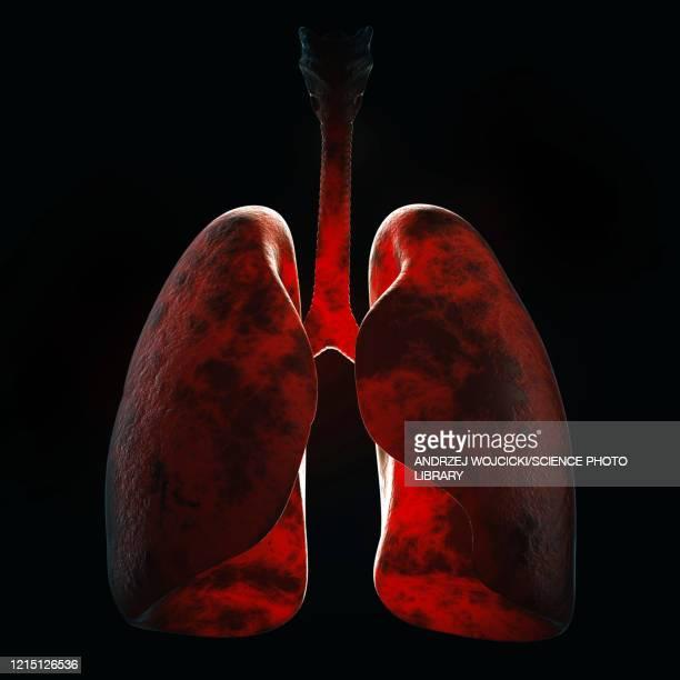 lung infection, illustration - black background stock illustrations