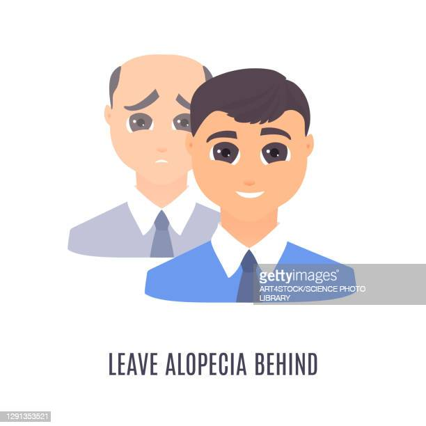 male alopecia treatment, conceptual illustration - the ageing process stock illustrations