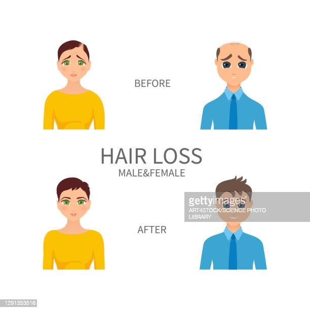 male and female pattern baldness, illustration - human scalp stock illustrations