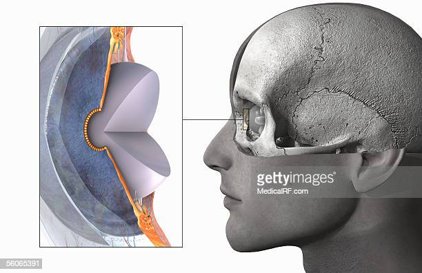 a male head and skull with a zoomed out close-up of the a sectioned lens. - choroid stock illustrations, clip art, cartoons, & icons