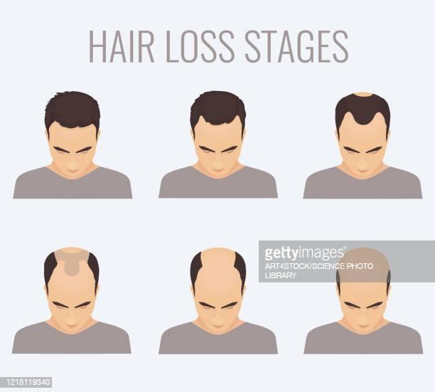 male-pattern baldness stages, illustration - balding stock illustrations