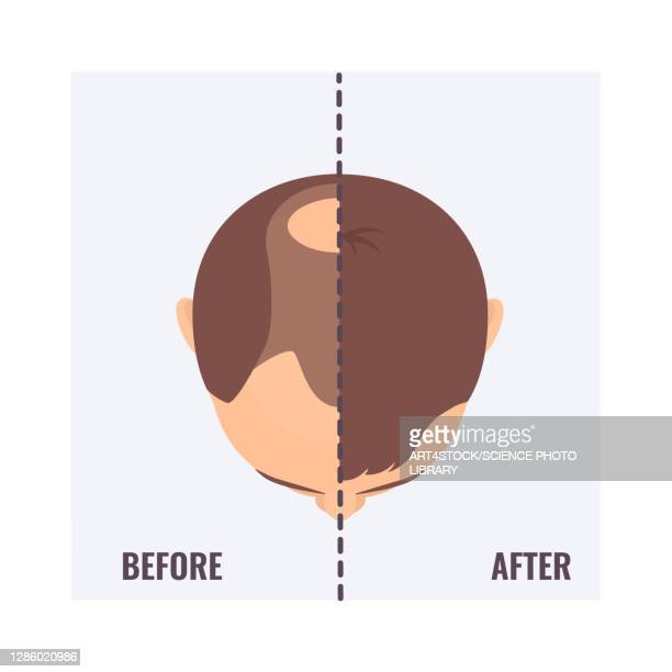 man before and after hair transplant, illustration - the ageing process stock illustrations