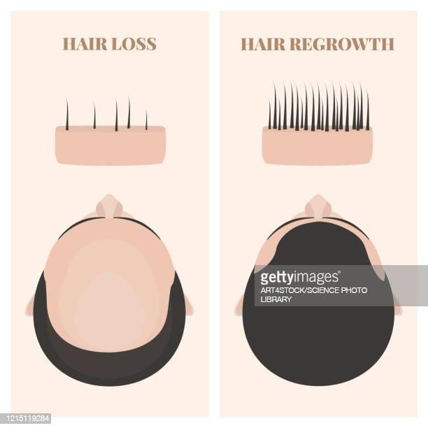man before and after hair transplantation, illustration - anticipation stock illustrations