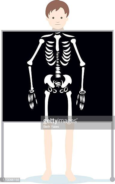 a man getting an xray done - x ray equipment stock illustrations, clip art, cartoons, & icons