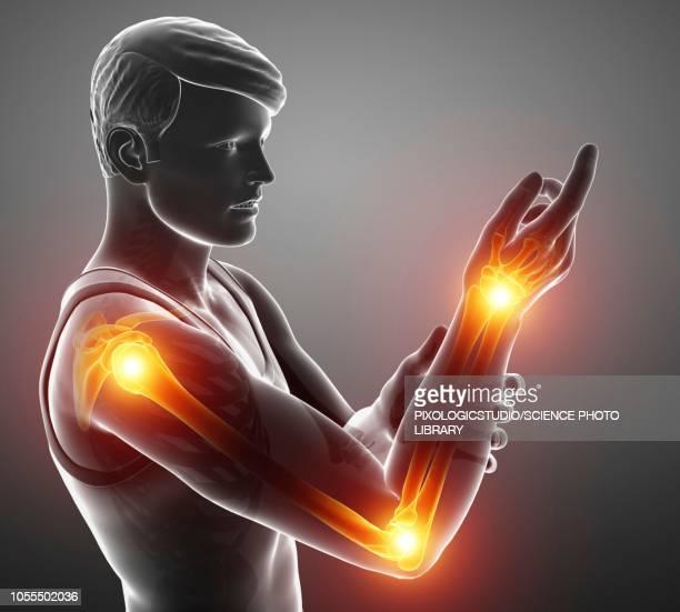 man with arm pain, illustration - wrist stock illustrations, clip art, cartoons, & icons