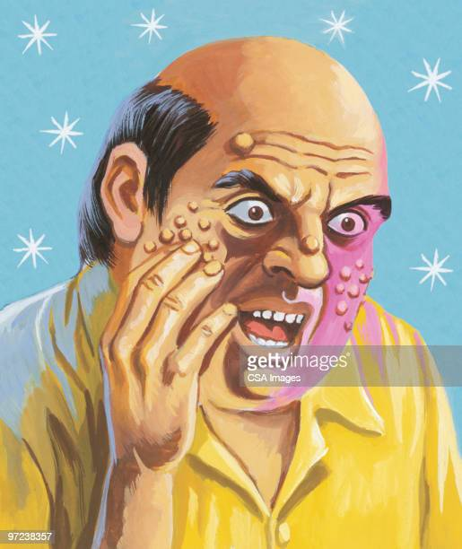 man with boils on his face - ugly bald man stock illustrations