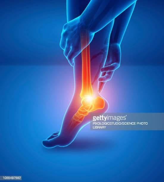 man with foot pain, illustration - arthritis stock illustrations