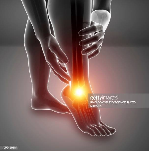 man with foot pain, illustration - inflammation stock illustrations