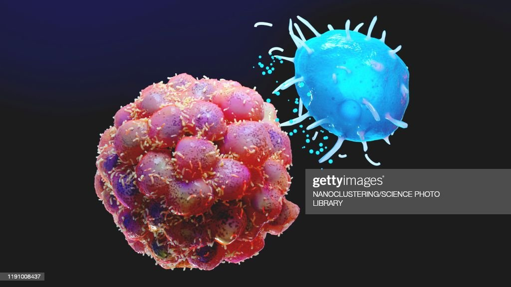 Mast cell and tumour, illustration : Stock Illustration