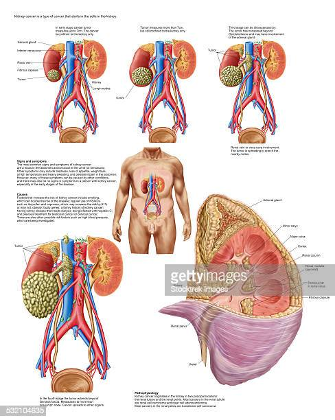 Medical chart showing the signs and symptoms of kidney cancer.