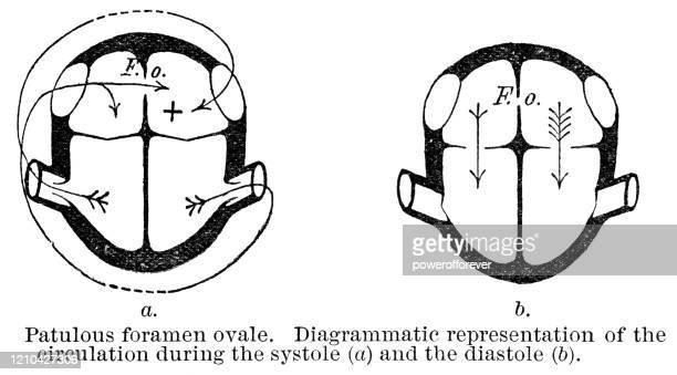 medical diagram showing heart function of patient with patent foramen ovale - 19th century - heart ventricle stock illustrations