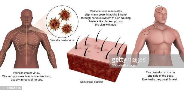 medical diagram showing shingles caused by the varicella-zoster virus. - spike protein stock illustrations