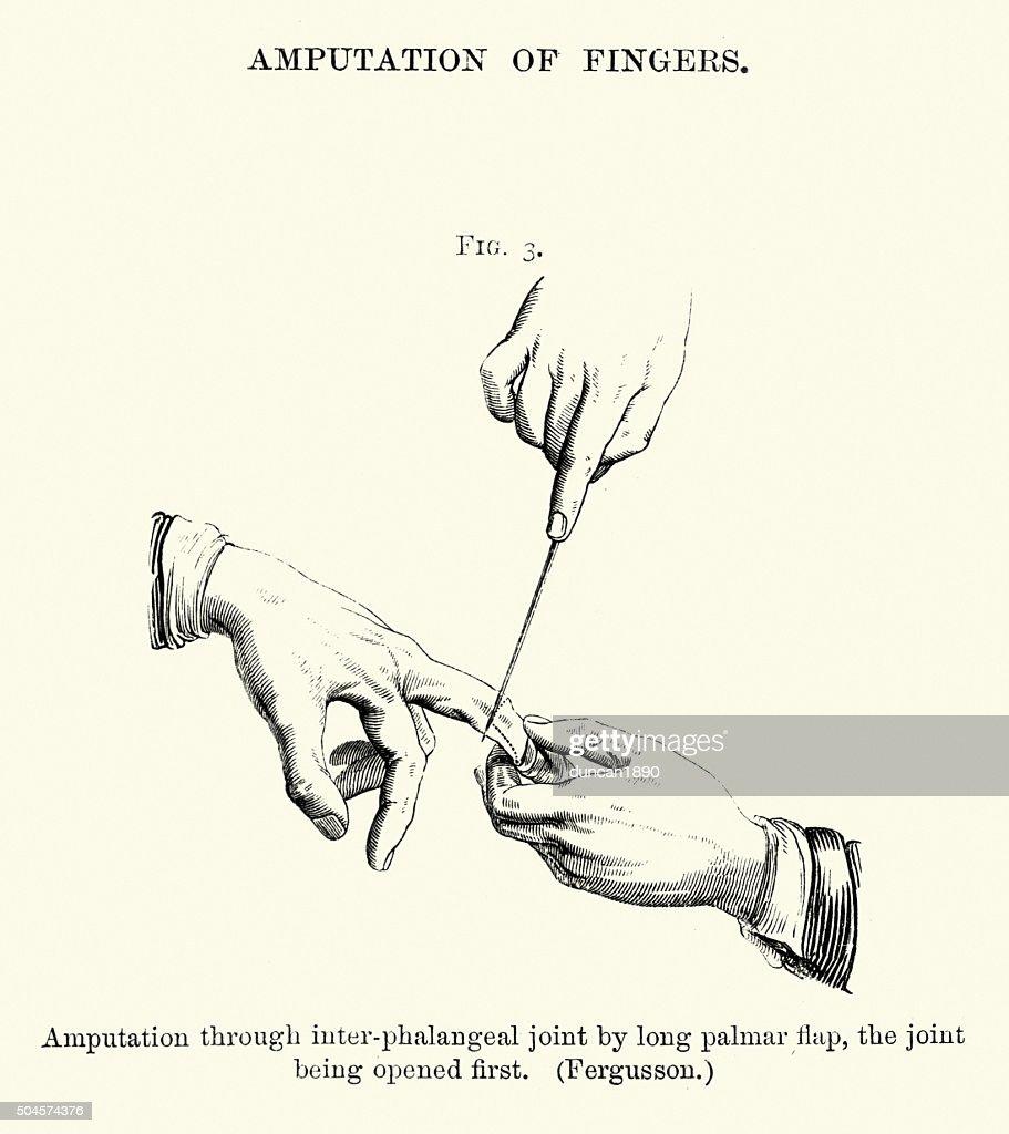 Historia clínica: amputación de los dedos : Ilustración de stock