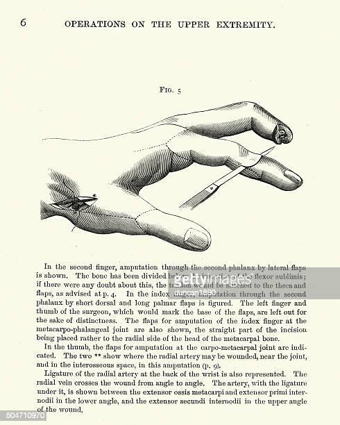 Historia clínica: amputación de los dedos