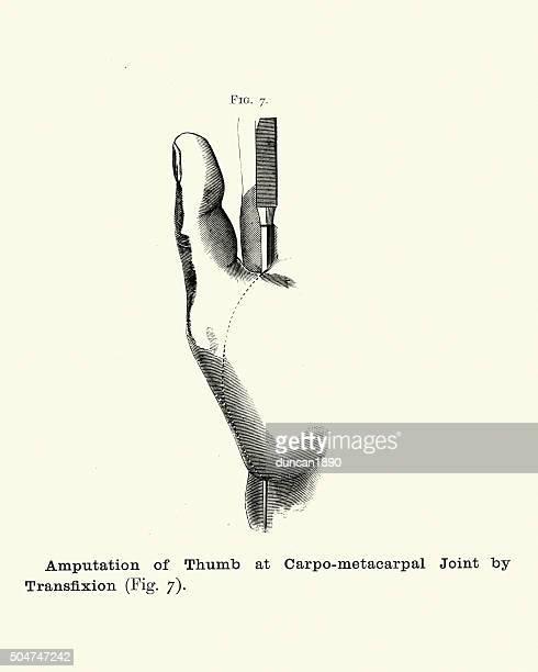 Historia clínica: amputación de pulgar