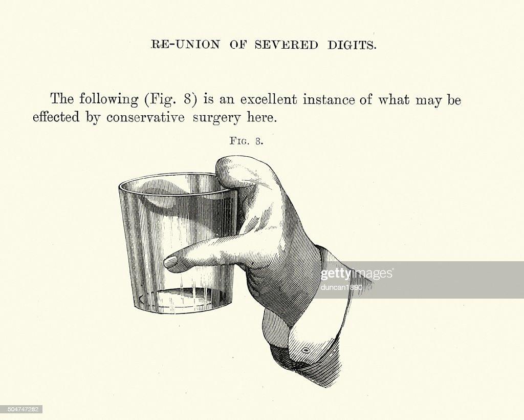 Historia clínica: cirugía Reconstructive de mano : Ilustración de stock