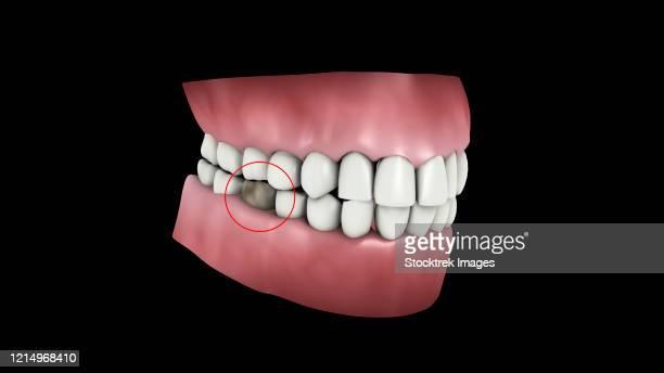 medical illustration of a tooth cavity. - dentin stock illustrations