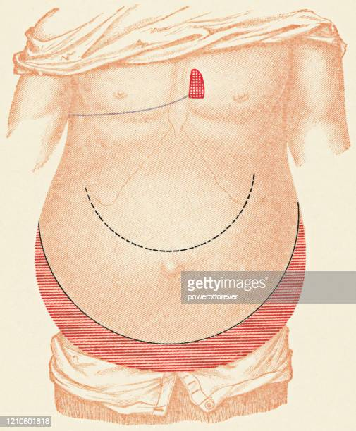 medical illustration of human torso with percussion exam points for a patient with peritonitis from a gastric ulcer, front view - 19th century - stomach ulcer stock illustrations