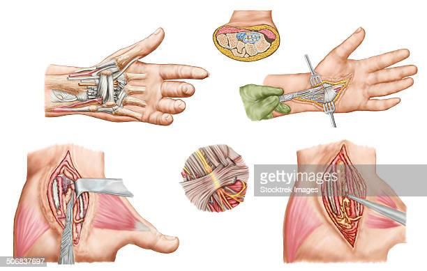 medical illustration showing carpal tunnel syndrome in the human wrist, and the surgical procedures associated with it. - neuropathy stock illustrations