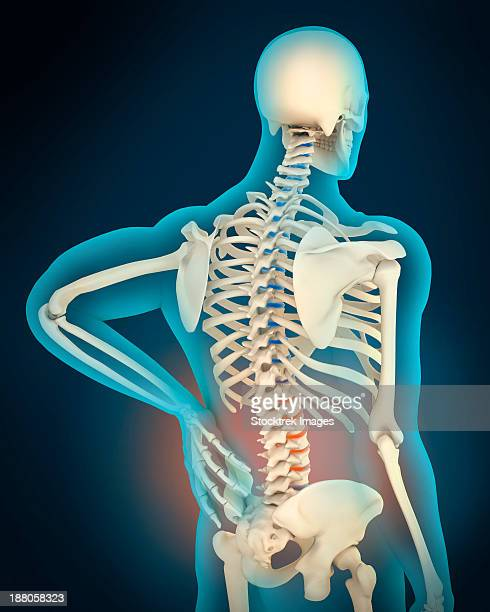 medical illustration showing inflammation and pain in human back area, perspective view. - human back stock illustrations, clip art, cartoons, & icons
