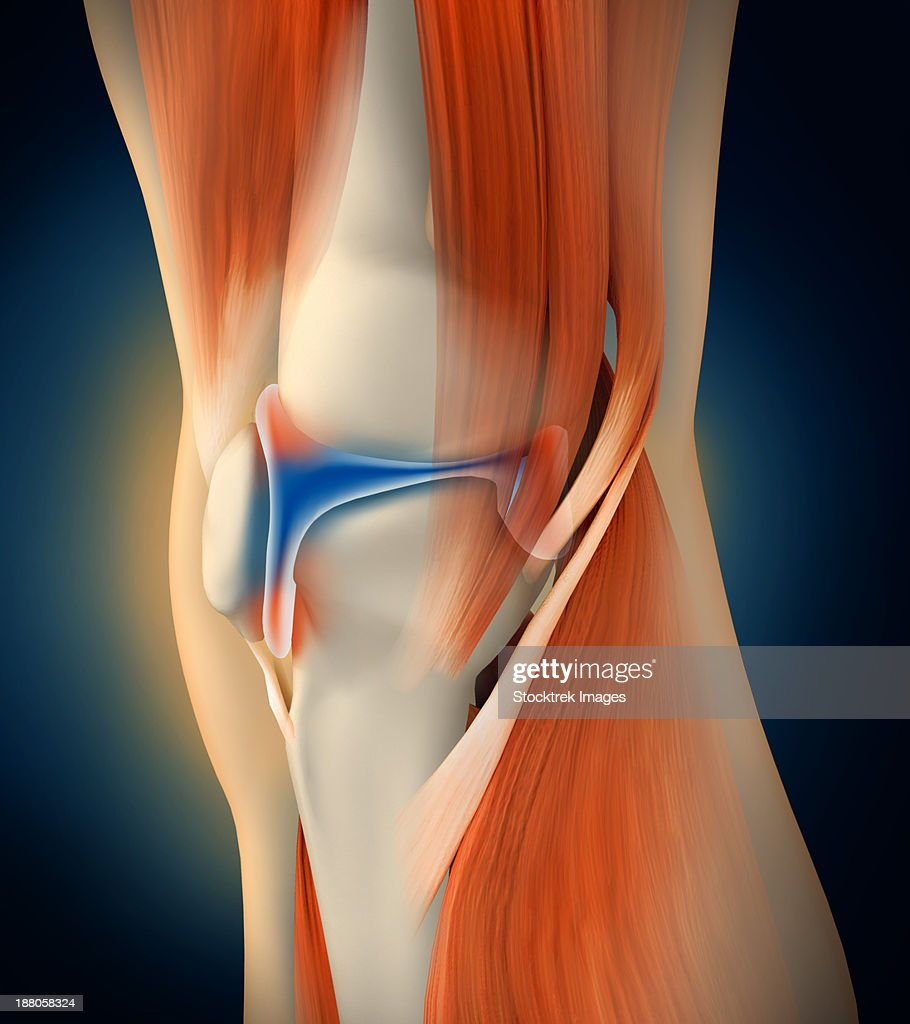 Medical Illustration Showing Inflammation And Pain In Human Knee