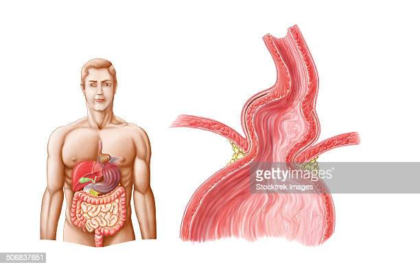 medical ilustration of a hiatal hernia in the upper part of the stomach into the thorax. - human small intestine stock illustrations