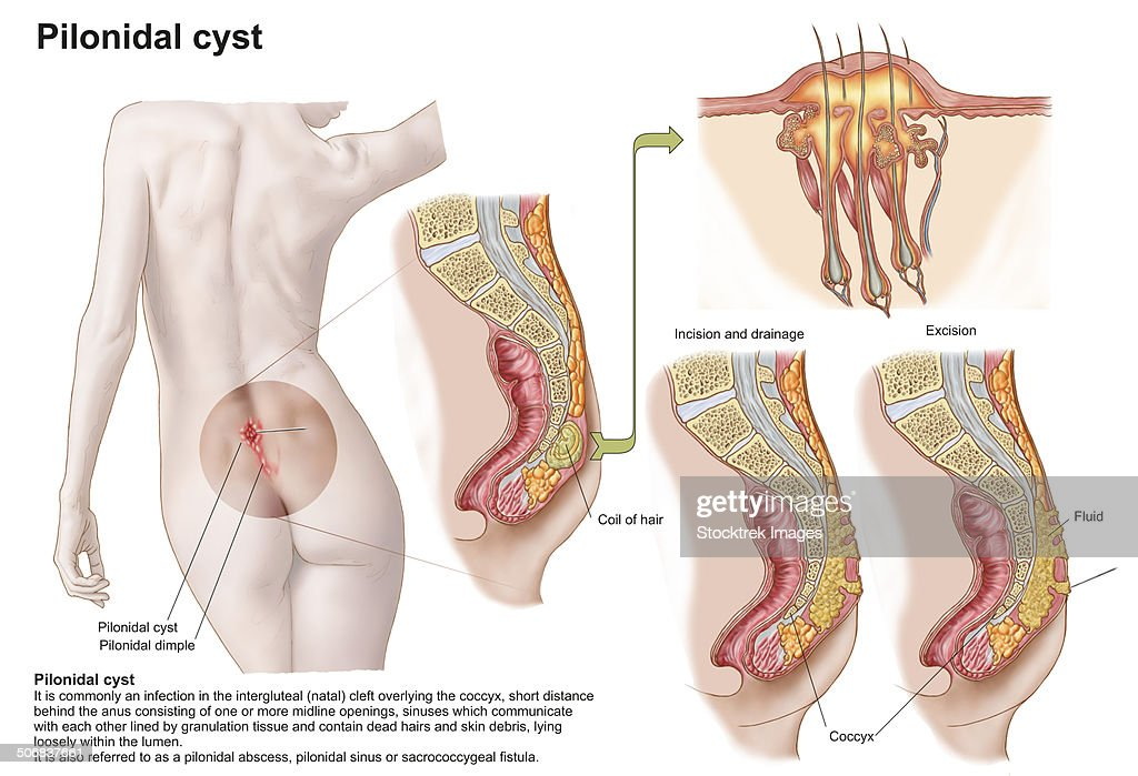 Anus Stock Illustrations And Cartoons Getty Images
