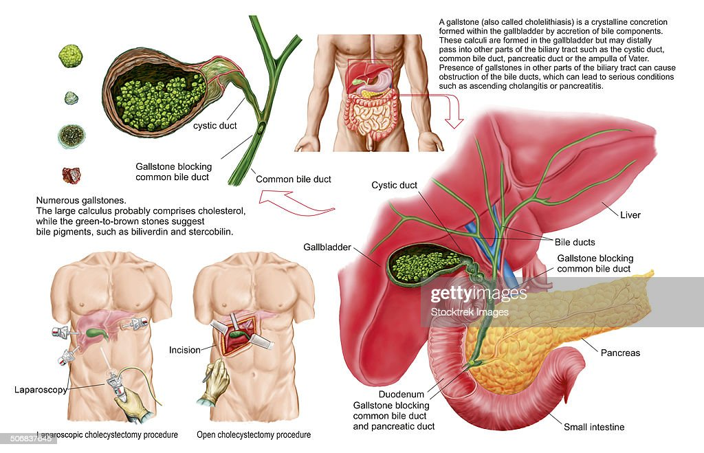 Fine Anatomy Of The Biliary Tract Crest - Anatomy And Physiology ...