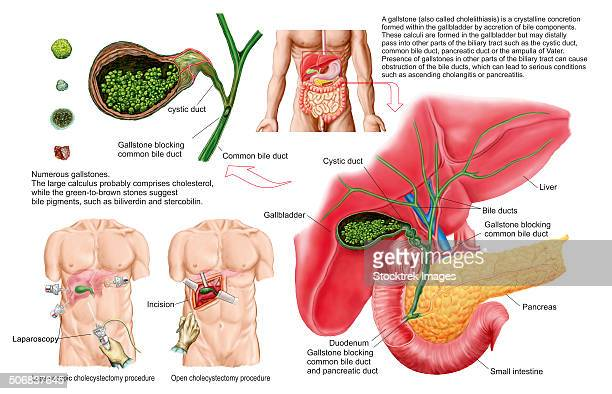 Common Bile Duct Stock Illustrations And Cartoons | Getty Images