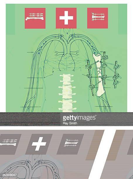 mending broken bone - broken arm stock illustrations, clip art, cartoons, & icons