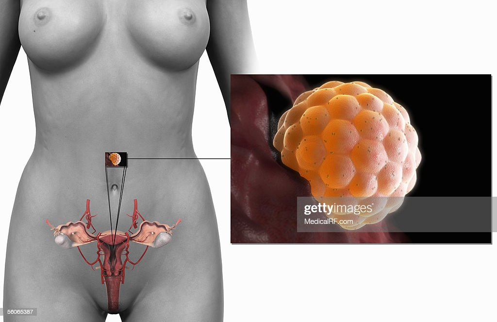A Microscopic View Of A Fertilised Female Egg Implanted In The ...