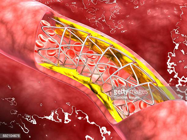 Microscopic view of an artery cross-section with blood flow, fat plaque and stent deployment.