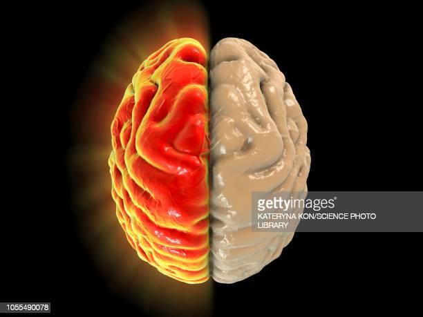 ilustraciones, imágenes clip art, dibujos animados e iconos de stock de migraine, conceptual image - dolor de cabeza