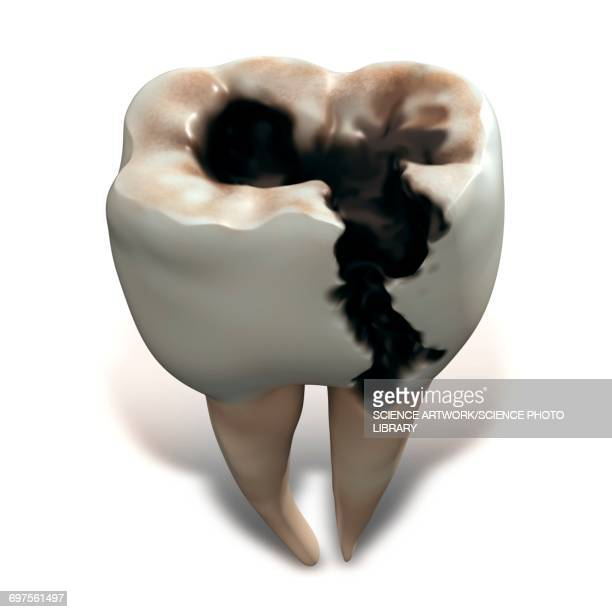 molar tooth decay - rotting stock illustrations, clip art, cartoons, & icons