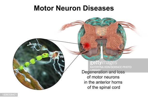 motor neuron diseases, illustration - neuropathy stock illustrations