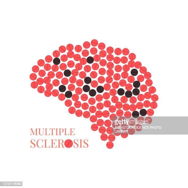 multiple sclerosis, conceptual illustration - neuroscience stock illustrations