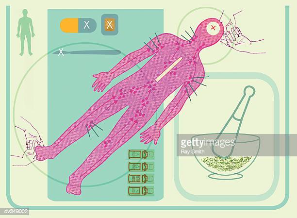 natural medicine and acupuncture - acupuncture stock illustrations, clip art, cartoons, & icons