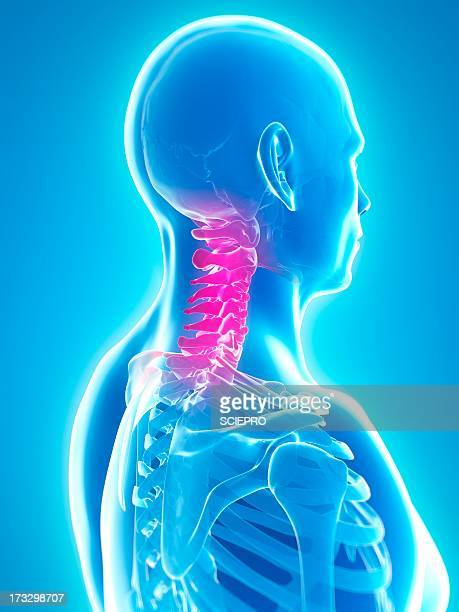 neck pain, conceptual artwork - human vertebra stock illustrations, clip art, cartoons, & icons